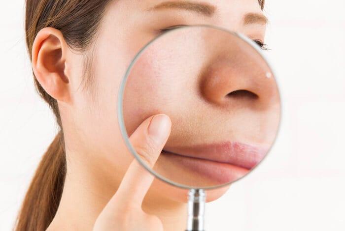 なくす 簡単 の 顔 毛穴 を 方法